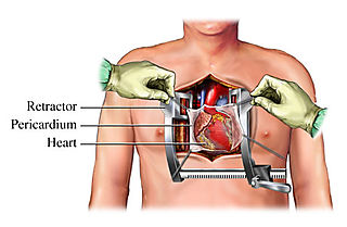 Open-heart-surgery-incision-diagram