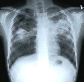 Tuberculosis-cough